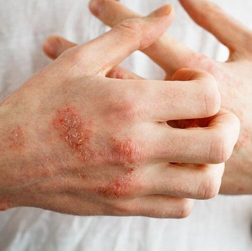 روش های خانگی برای تسکین عوارض اگزما